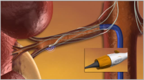 RDN Procedure 2 - Catheter-based Energy Delivery